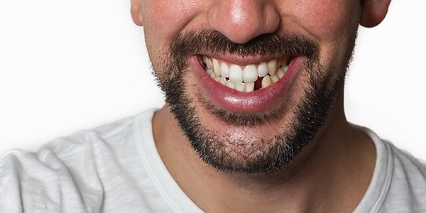 Your-Missing-Tooth-May-Be-Causing-Serious-Issues!