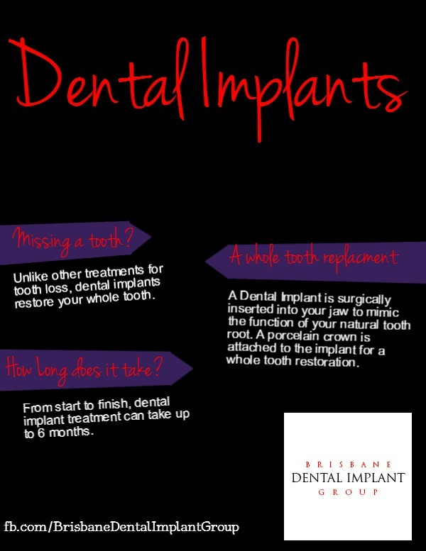 Brisbane Dental Implant Group