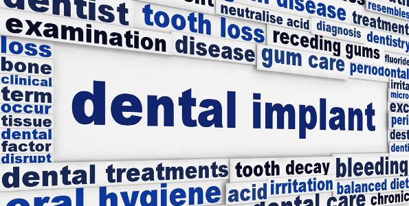 dentalimplants banner