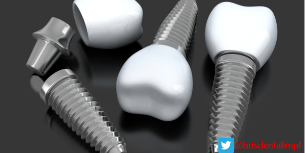 Dental Implant Screws and Crowns