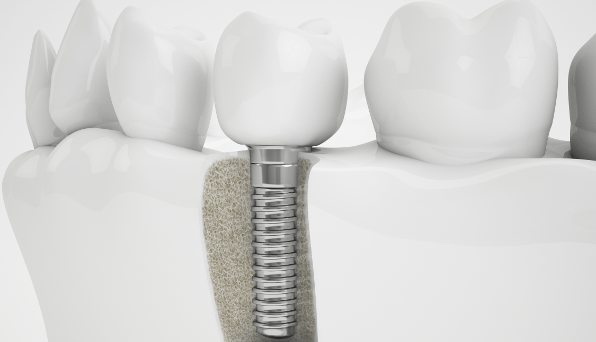 Dental implant cost varies from patient to patient depending on your oral health condition.