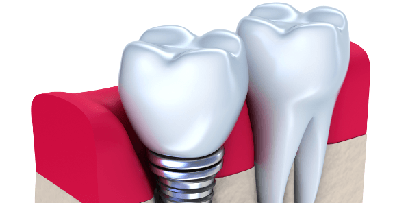 best option dental implants