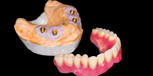 The best denture treatment is implant-supported dentures
