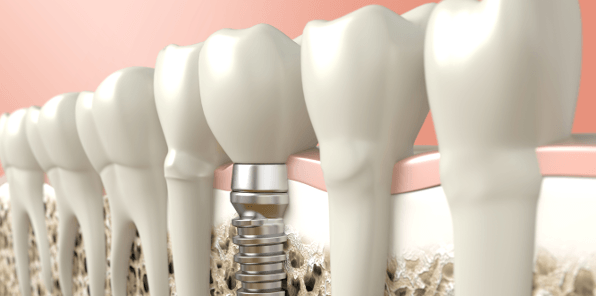implant dentistry in Brisbane
