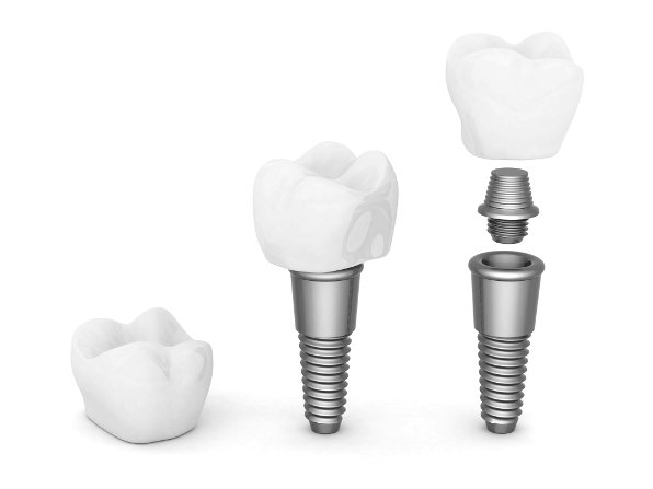 teeth implants are more commonly referred to as dental implants.