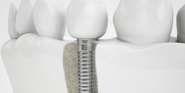 Dental implants cost Brisbane