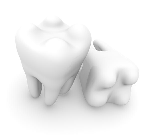 Can dental veneers replace missing teeth?