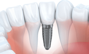 "New study: ""Implants improve quality of life and save on long-term costs"""