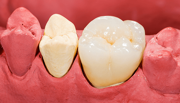 How to replace missing teeth