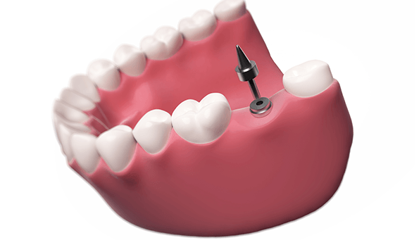 What are my options to replace missing teeth?