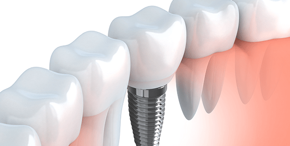 A tooth implant can help restore your chewing and speaking