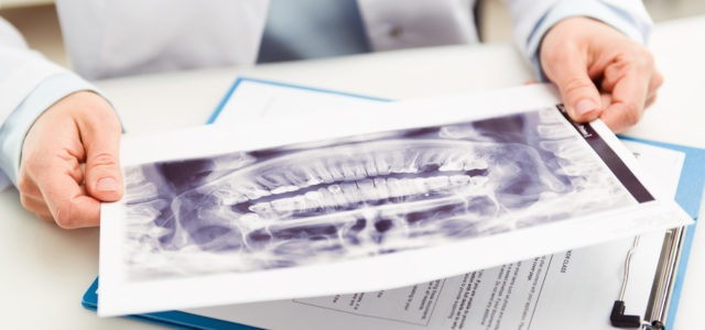 Radiograph Result from Dental Xray
