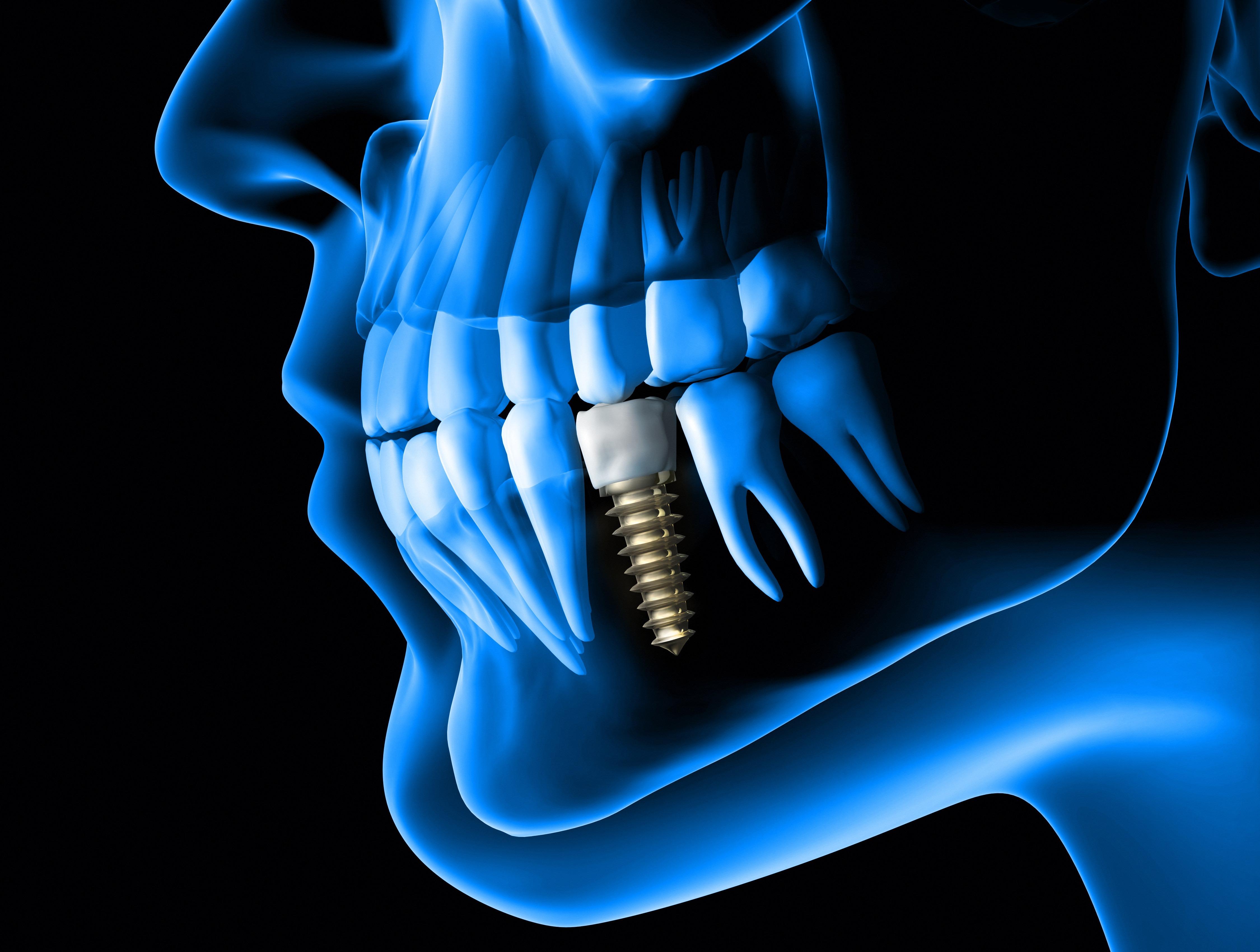 Implant Teeth Blue Scan
