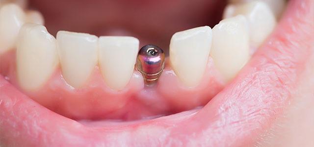 Dental Implant Screws