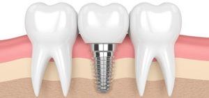 Dental Implant Between Natural Teeth