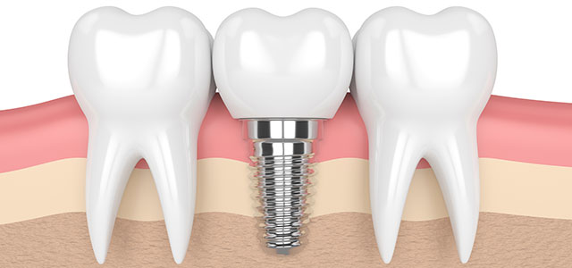 Dental Implant Between Natural Teeth